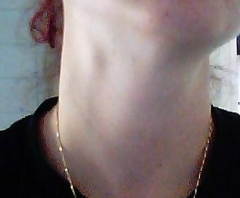små knutor på halsen