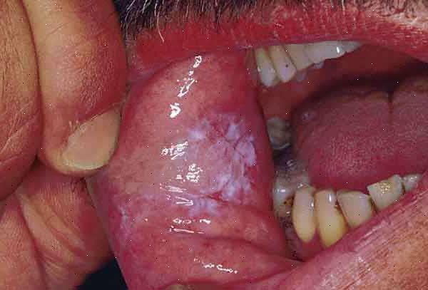 torsk i munnen