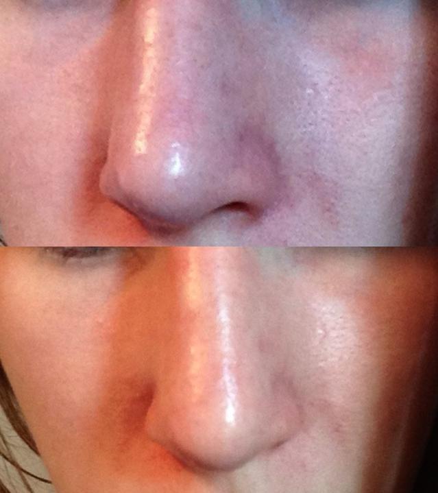 röd och irriterad hud i ansiktet