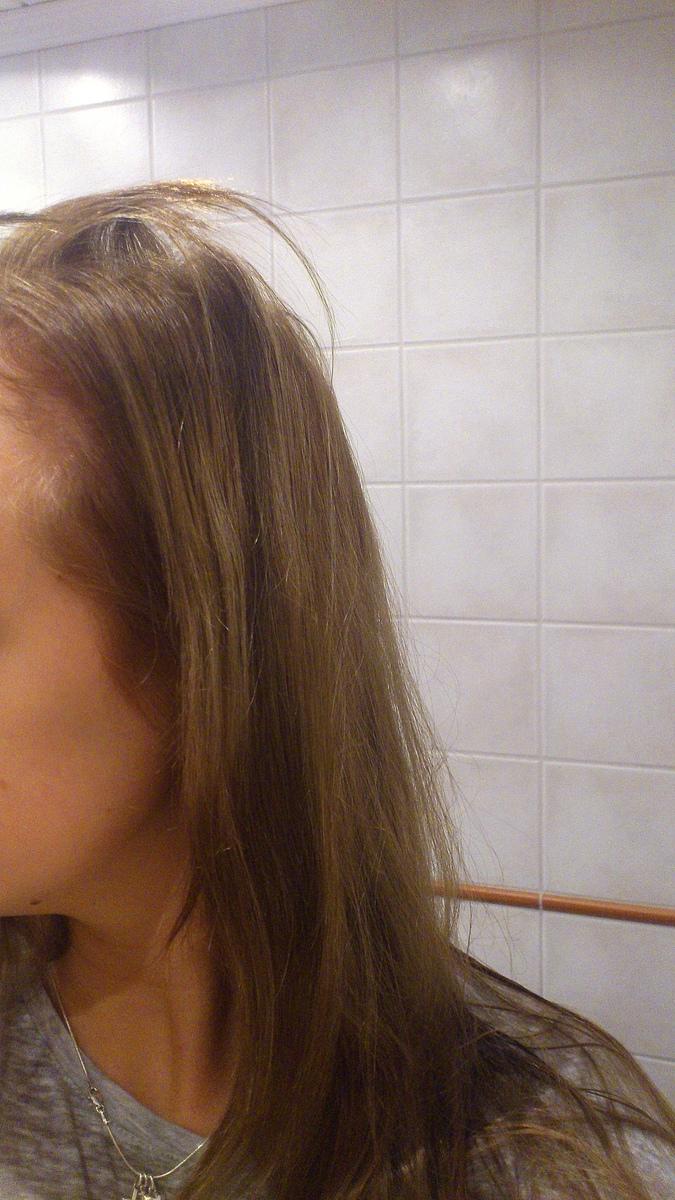 varför går håret av